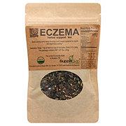 Supple Skin Boutique Mini Drama-Eczema Tea